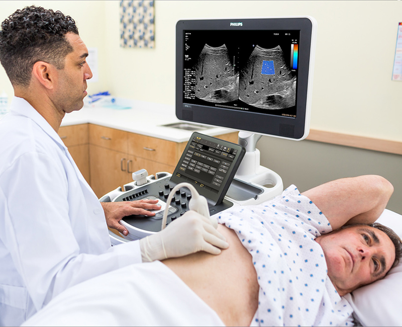 Philips Cleared To Market ElastQ Imaging Shear Wave Elastography