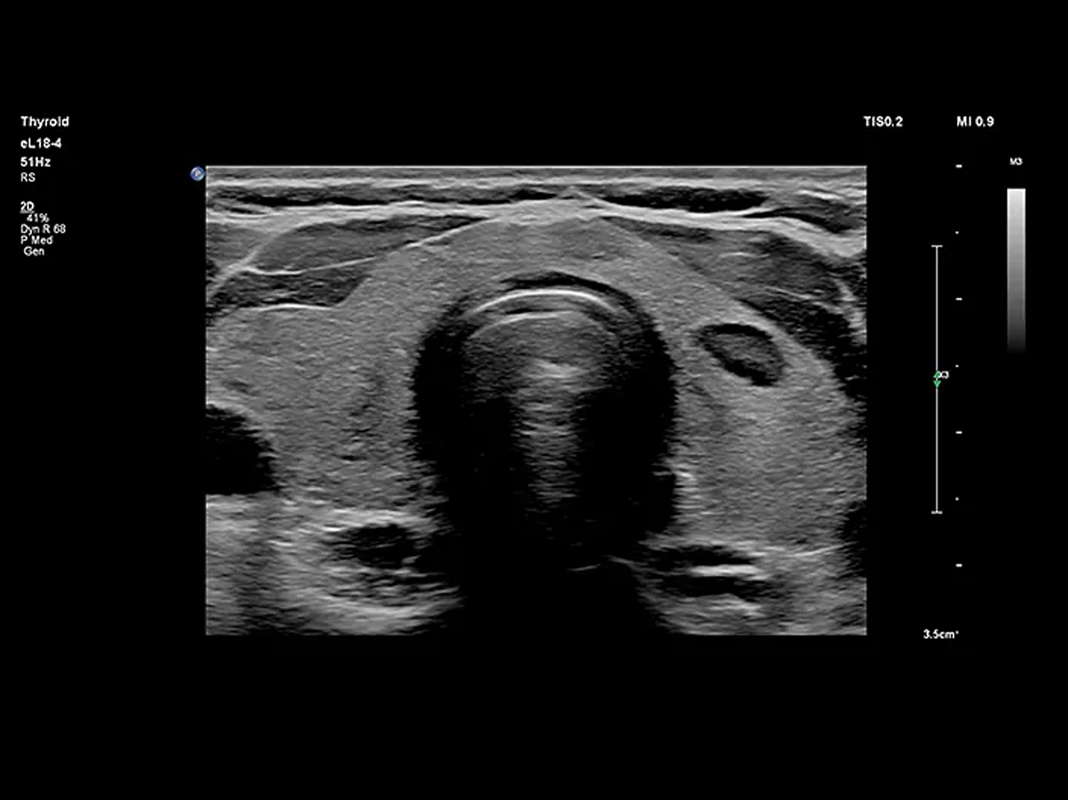 Philips Receives Clearance for 'Small Parts' Ultrasound Imaging