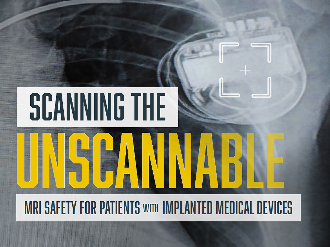 Scanning the Unscannable: MRI Safety for Patients with Implanted Medical Devices