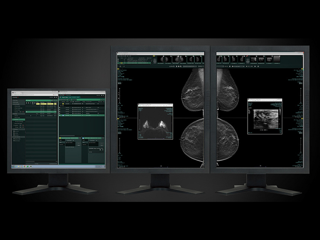 Fujifilm Synapse PACS