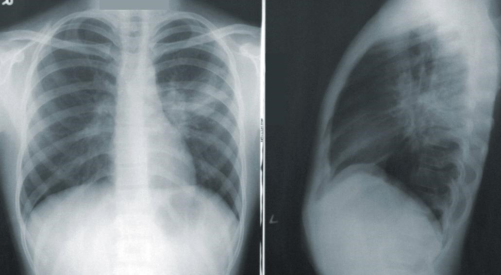 RESEARCH: CHEST X-RAY ISN'T RELIABLE DIAGNOSTIC TOOL FOR COVID-19