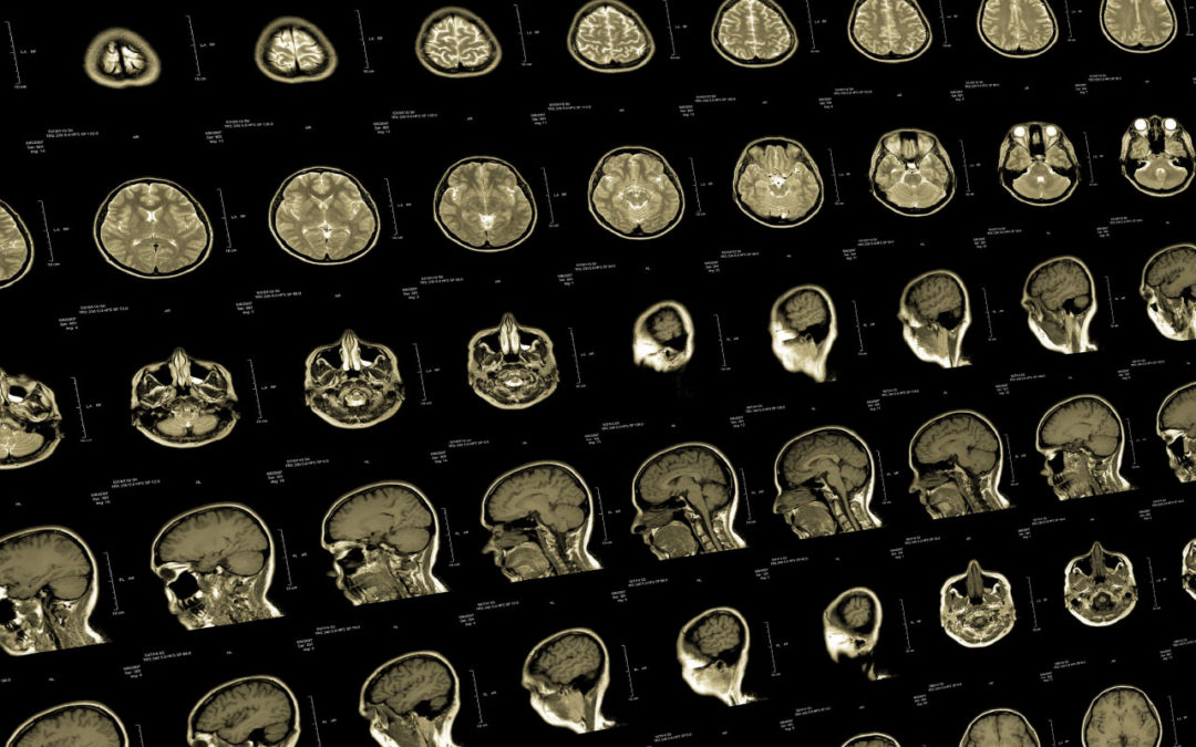 Report: AI-Enabled Medical Imaging Solutions Market to Reach $9.61 Billion