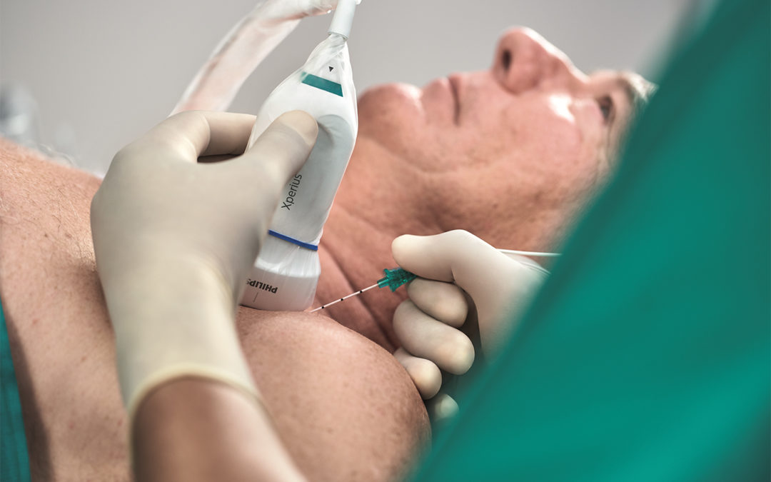 FDA Clears Onvision Needle Tip Tracking Technology for Regional Anesthesia