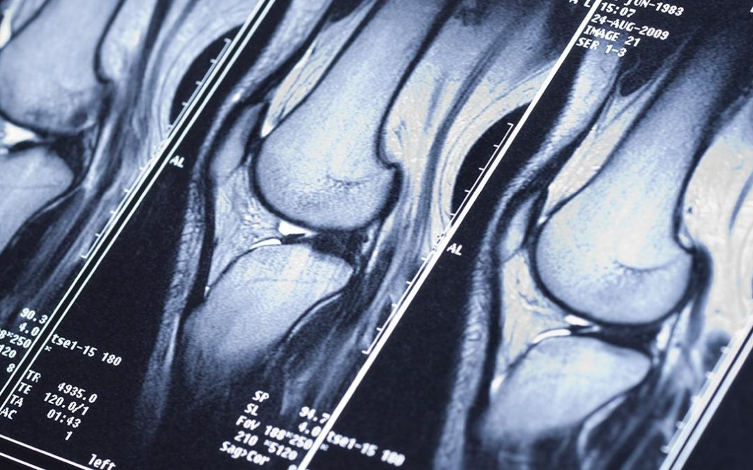 New Research Finds FastMRI Scans Generated with Artificial Intelligence Are as Accurate as Traditional MRI