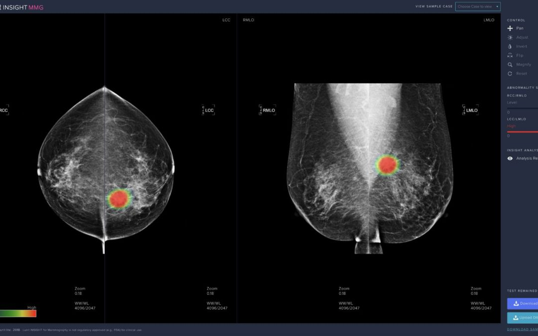 Studies Reveal High Performance of Lunit AI in Breast Cancer Detection