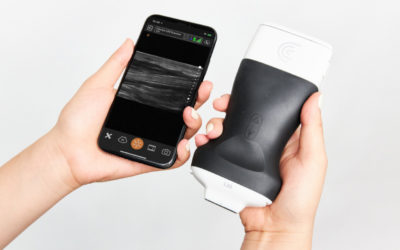 Clarius Introduces Ultra-High Frequency Handheld Ultrasound Scanner