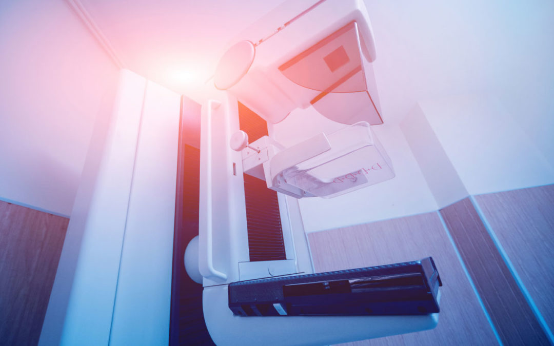 Report: Mammography Systems Market to Reach $3.5 Billion