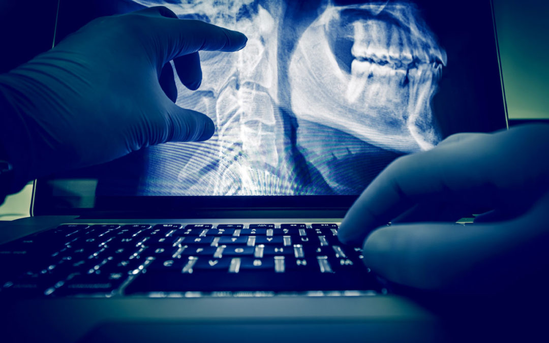 Report: Medical Image Analysis Software Market to Hit $4.5 Billion