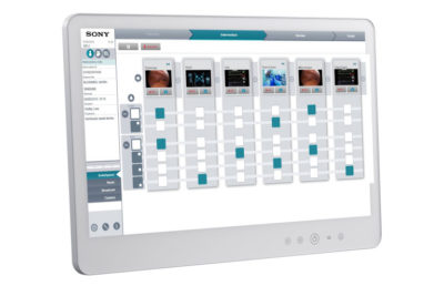 Sony's Medical Imaging Platform, NUCLeUS, Debuts New Functionality to Support Remote Patient Observation