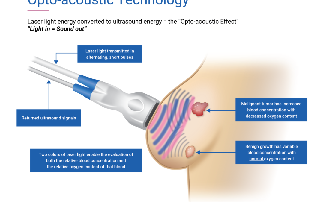 FDA Approves Seno Medical's Breast Cancer Diagnostic Technology