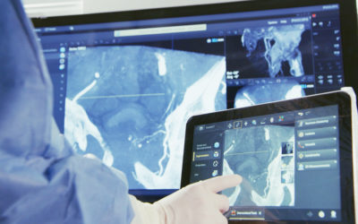 Philips SmartCT 3D Software Receives FDA 510(k) Clearance