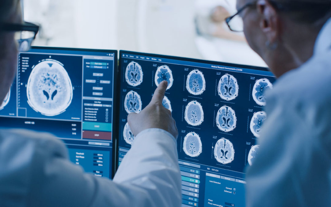 Where in the Hype Cycle is Radiology AI?