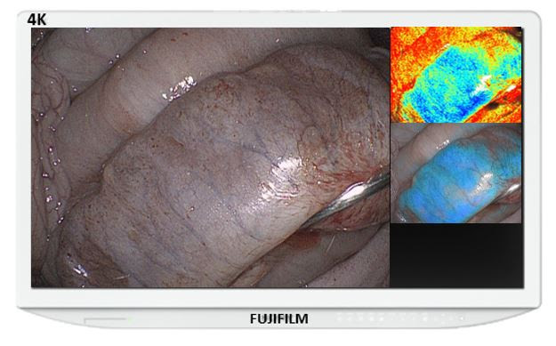 FDA Grants 510(k) Clearance for Fujifilm's New Endosurgical Image Enhancement Technology