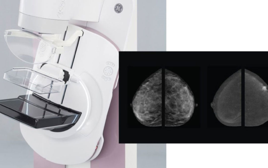 GE Healthcare SenoBrightHD – Contrast Mammography